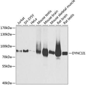 Signal Transduction Antibodies 2 Anti-DYNC1I1 Antibody CAB3833