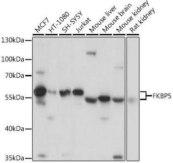Signal Transduction Antibodies 2 Anti-FKBP5 Antibody CAB3863
