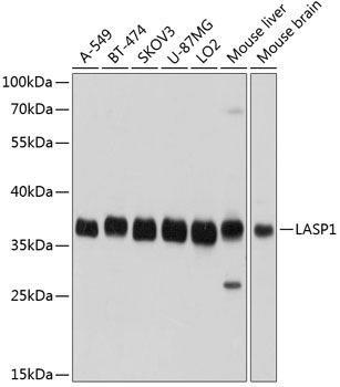 Signal Transduction Antibodies 2 Anti-LASP1 Antibody CAB3941