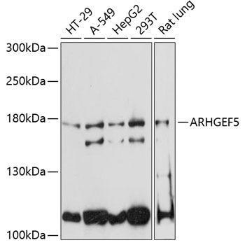 Signal Transduction Antibodies 2 Anti-ARHGEF5 Antibody CAB4196