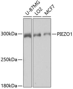 Signal Transduction Antibodies 2 Anti-PIEZO1 Antibody CAB4340