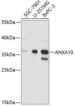 Signal Transduction Antibodies 2 Anti-ANXA10 Antibody CAB4492