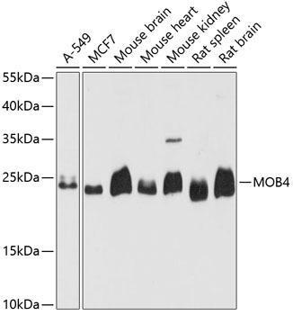 Signal Transduction Antibodies 2 Anti-MOB4 Antibody CAB4590