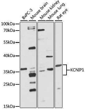 Signal Transduction Antibodies 2 Anti-KCNIP1 Antibody CAB4684
