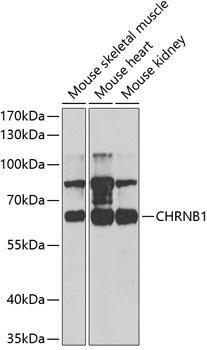 Signal Transduction Antibodies 2 Anti-CHRNB1 Antibody CAB5295