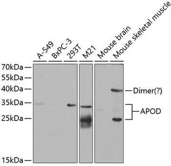 Signal Transduction Antibodies 2 Anti-APOD Antibody CAB5297