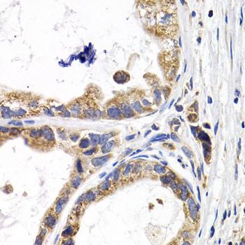 Signal Transduction Antibodies 3 Anti-FABP3 Antibody CAB5312