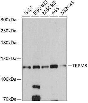 Signal Transduction Antibodies 3 Anti-TRPM8 Antibody CAB5333