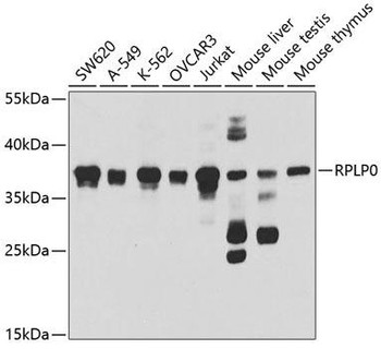 Immunology Antibodies 2 Anti-RPLP0 Antibody CAB5557