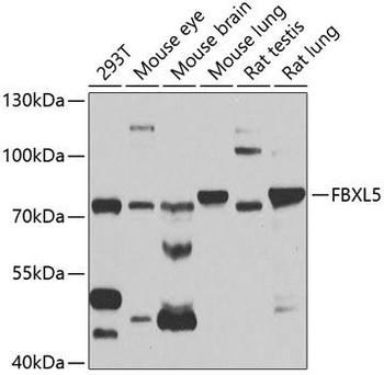 Signal Transduction Antibodies 3 Anti-FBXL5 Antibody CAB5602