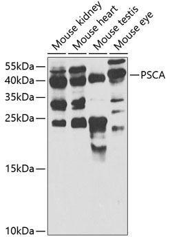 Cell Biology Antibodies 9 Anti-PSCA Antibody CAB5614