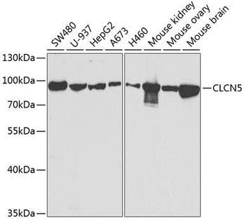 Signal Transduction Antibodies 3 Anti-CLCN5 Antibody CAB5707