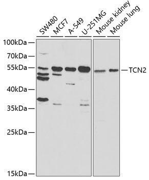 Signal Transduction Antibodies 3 Anti-TCN2 Antibody CAB5755