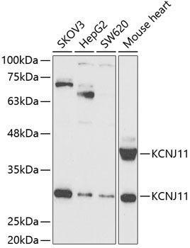 Signal Transduction Antibodies 3 Anti-KCNJ11 Antibody CAB5765
