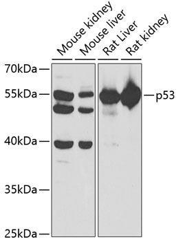 Cell Biology Antibodies 16 Anti-p53 Antibody CAB5804