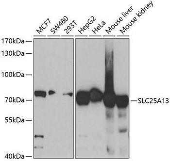 Signal Transduction Antibodies 3 Anti-SLC25A13 Antibody CAB5849