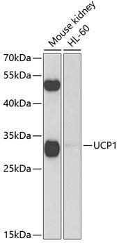 Signal Transduction Antibodies 3 Anti-UCP1 Antibody CAB5857