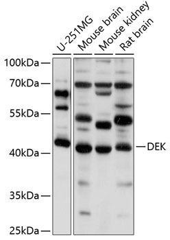 Cell Biology Antibodies 9 Anti-DEK Antibody CAB5901