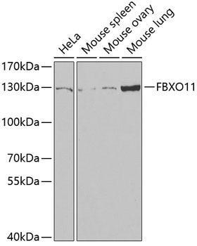 Signal Transduction Antibodies 3 Anti-FBXO11 Antibody CAB6153