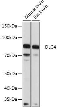 Cell Biology Antibodies 10 Anti-DLG4 Antibody CAB6194