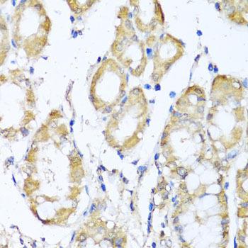 Signal Transduction Antibodies 3 Anti-KCND2 Antibody CAB6203