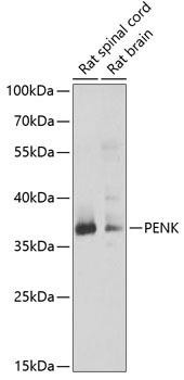 Cell Biology Antibodies 10 Anti-PENK Antibody CAB6302