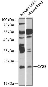 Signal Transduction Antibodies 3 Anti-CYGB Antibody CAB6488