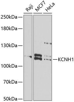 Signal Transduction Antibodies 3 Anti-KCNH1 Antibody CAB6636