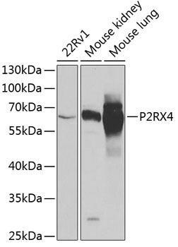Signal Transduction Antibodies 3 Anti-P2RX4 Antibody CAB6682