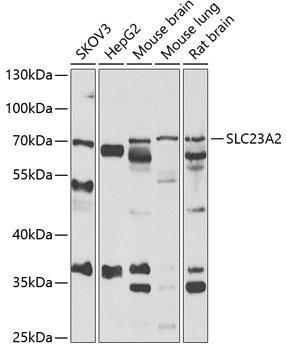 Signal Transduction Antibodies 3 Anti-SLC23A2 Antibody CAB6740
