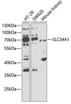 Signal Transduction Antibodies 3 Anti-SLC34A1 Antibody CAB6742