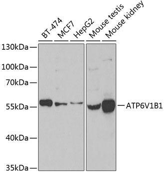 Signal Transduction Antibodies 3 Anti-ATP6V1B1 Antibody CAB6876