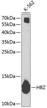 Signal Transduction Antibodies 3 Anti-HBZ Antibody CAB6920