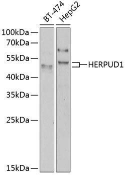 Signal Transduction Antibodies 3 Anti-HERPUD1 Antibody CAB7048