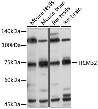 Signal Transduction Antibodies 3 Anti-TRIM32 Antibody CAB7079