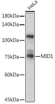 Signal Transduction Antibodies 3 Anti-MID1 Antibody CAB7291