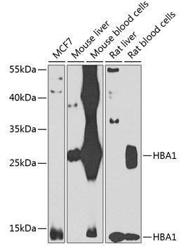Signal Transduction Antibodies 3 Anti-HBA1 Antibody CAB7322