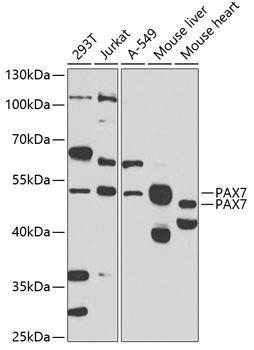 Cardiovascular Antibodies Anti-PAX7 Antibody CAB7335