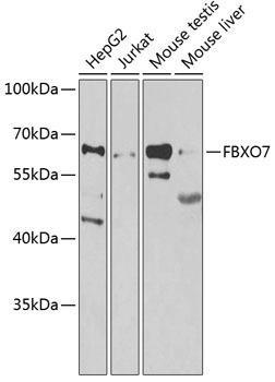 Signal Transduction Antibodies 3 Anti-FBXO7 Antibody CAB7464