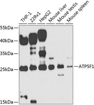 Signal Transduction Antibodies 3 Anti-ATP5F1 Antibody CAB7645