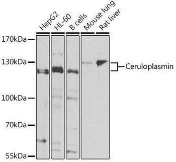 Cell Biology Antibodies 11 Anti-Ceruloplasmin Antibody CAB7658