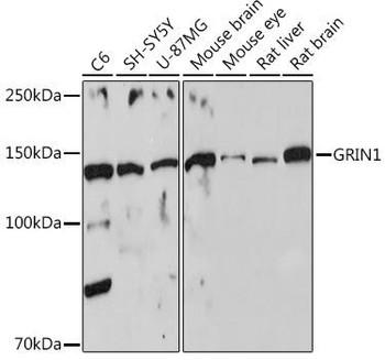 Signal Transduction Antibodies 3 Anti-GRIN1 Antibody CAB7677