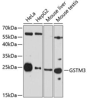 Signal Transduction Antibodies 3 Anti-GSTM3 Antibody CAB7679