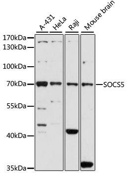 Developmental Biology Anti-SOCS5 Antibody CAB7952