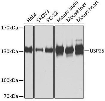 Signal Transduction Antibodies 3 Anti-USP25 Antibody CAB7975