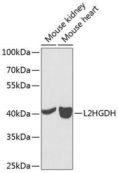 Cell Biology Antibodies 11 Anti-L2HGDH Antibody CAB7996