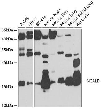 Cell Biology Antibodies 11 Anti-Neurocalcin-delta Antibody CAB8000