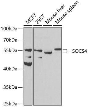 Developmental Biology Anti-SOCS4 Antibody CAB8003