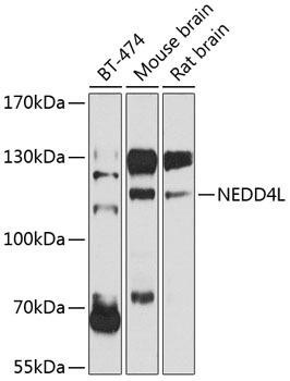 Developmental Biology Anti-NEDD4L Antibody CAB8085