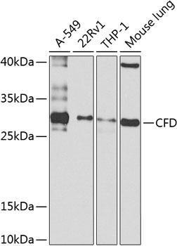Immunology Antibodies 3 Anti-Complement factor D Antibody CAB8117